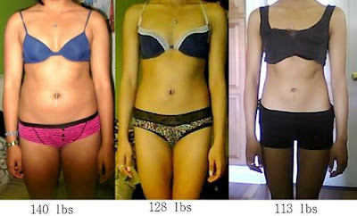 What is weight loss surgery called